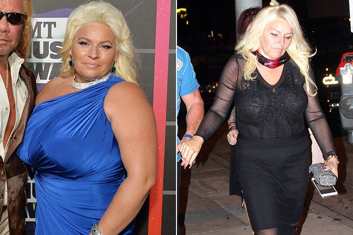 beth chapman weight loss before and after 6514800